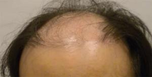 Correction of Previous Bad Hair Transplant - Correction of Bad Hair