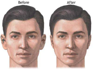 Get ear reshaping surgery & Best ear surgery in delhi (India)