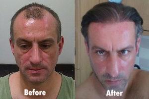 Best fue hair transplant in delhi , Gurgaon - Cost & Clinic