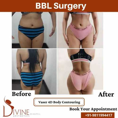 BBL-with-Vaser-4D-Body-Contouring