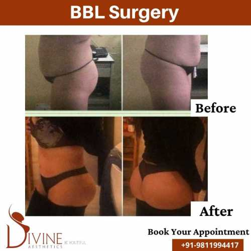 Brazillian-Buttock-Lift-Before-After-by-Divine-Cosmetic-Surgery