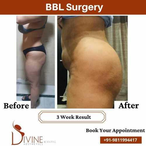 Brazillian-Buttock-Lift-Surgery-results-by-dr-Amit-Gupta
