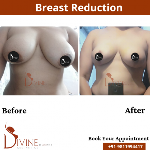 Breast-Reduction-4