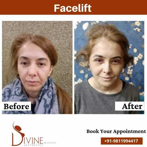 Facelift-before-After-results-Front