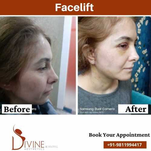 Facelift-before-After-results-Side