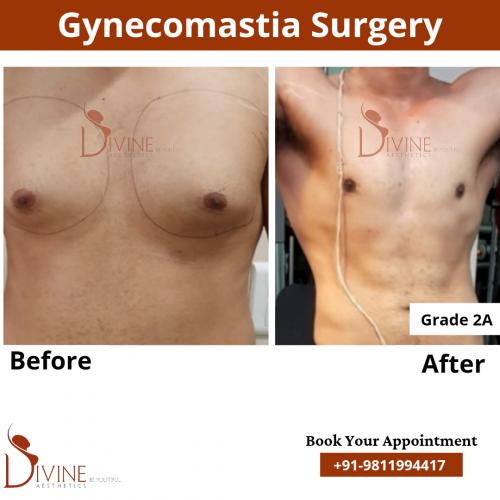 gynecomastia-in-delhi