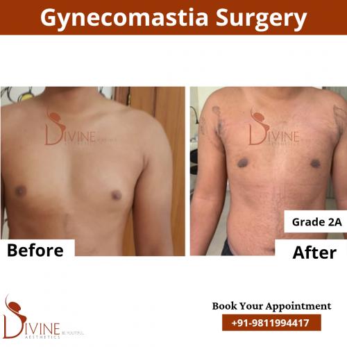 gynecomastia-surgery-in-delhi-cost