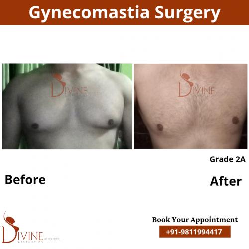 male-breast-reduction-in-delhi