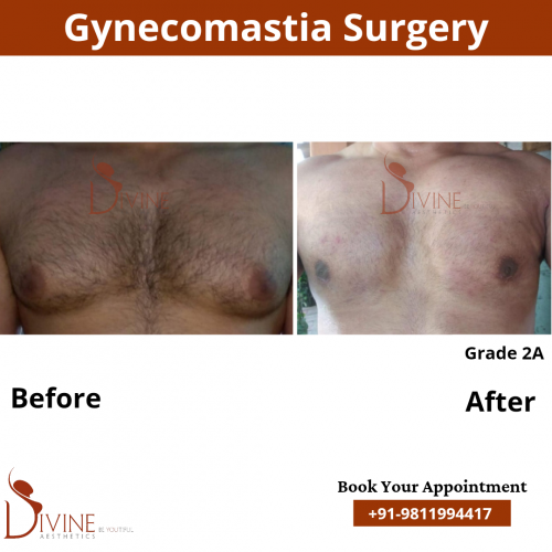 male-breast-reduction-surgery-in-delhi