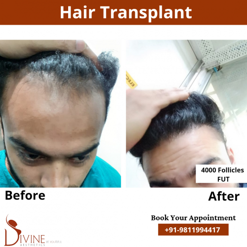 FUT-Hair-Transplant-14