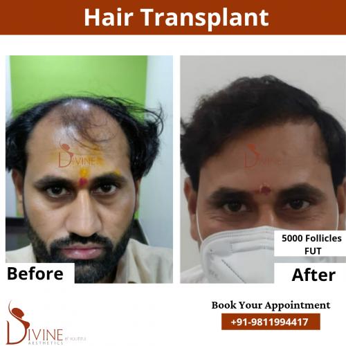 FUT-Hair-Transplant-16