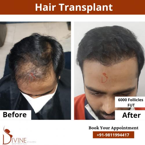FUT-Hair-Transplant-17