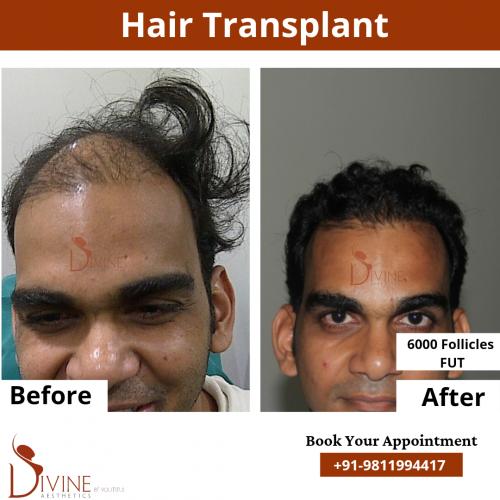 FUT-Hair-Transplant-18