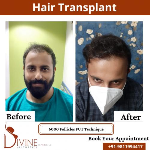 FUT-Hair-Transplant-19