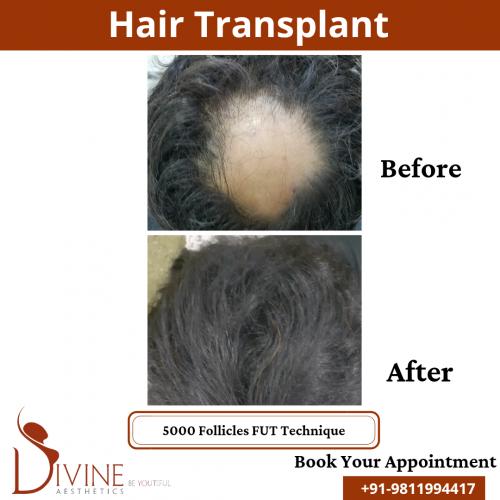 FUT-Hair-Transplant-20