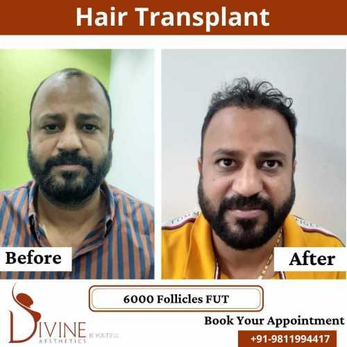 FUT-Hair-Transplant-21