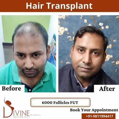 FUT-Hair-Transplant-22