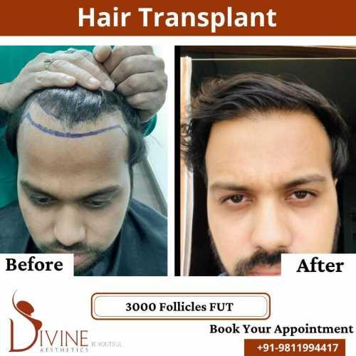 FUT-Hair-Transplant-24