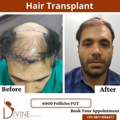 FUT-Hair-Transplant-25