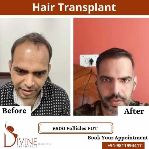 FUT-Hair-Transplant-26