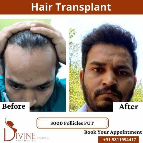 FUT-Hair-Transplant-27