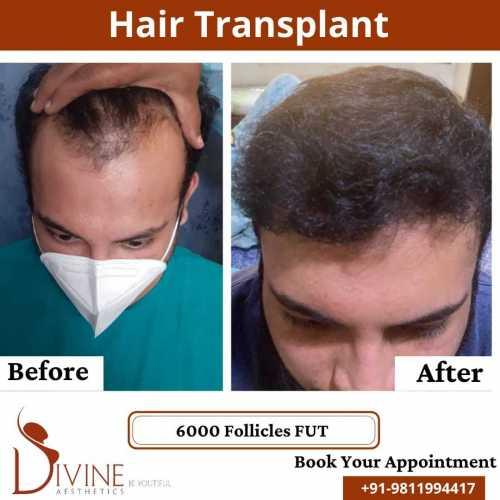 FUT-Hair-Transplant-29