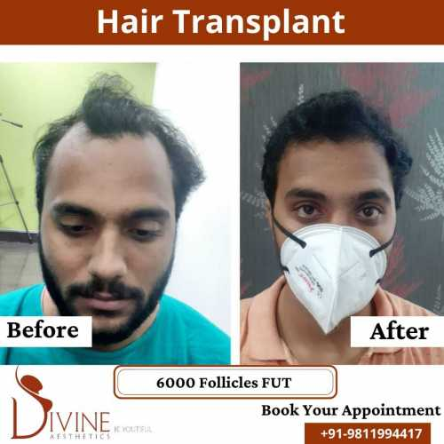FUT-Hair-Transplant-30