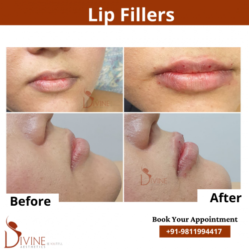 Lip-lift-before-after-result-by-dr-amit-gupta
