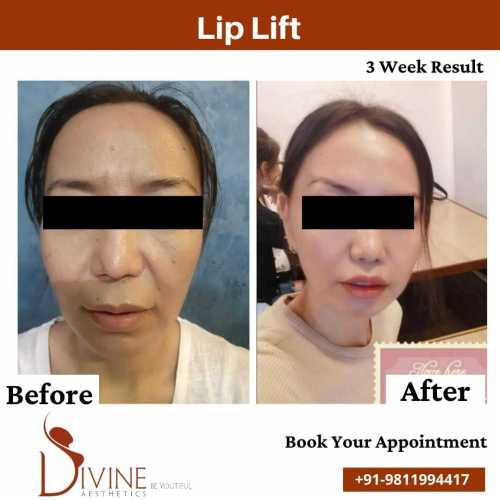 Lip-lift-before-after-by-dr-amit-gupta