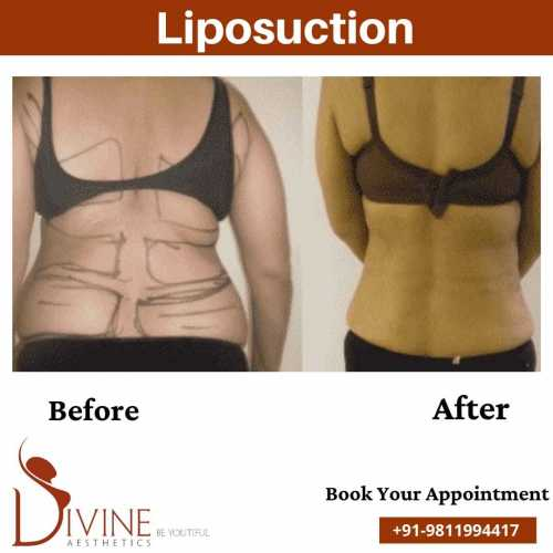 Back-Liposuction-Surgery-before-after