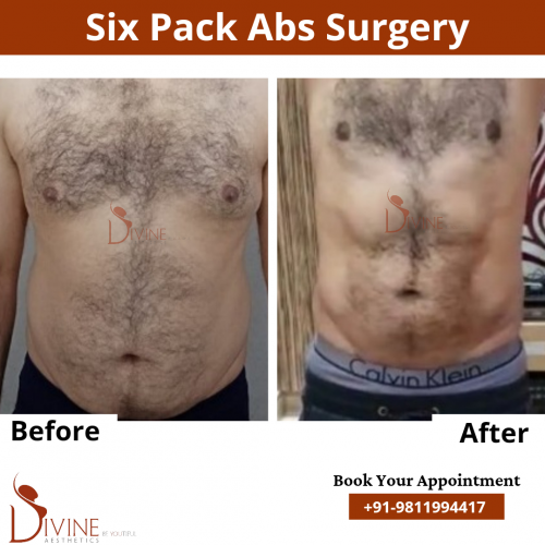 Six-Pack-Abs-Surgery-6