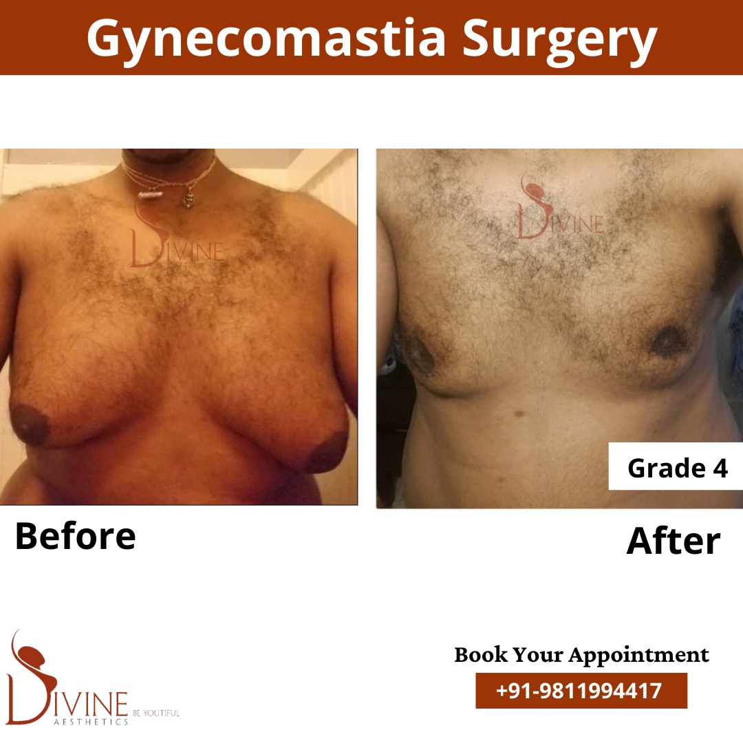 Here we have gynecomastia grade 4a before and after picture of our patient. This surgery is done by doctor Amit Gupta.