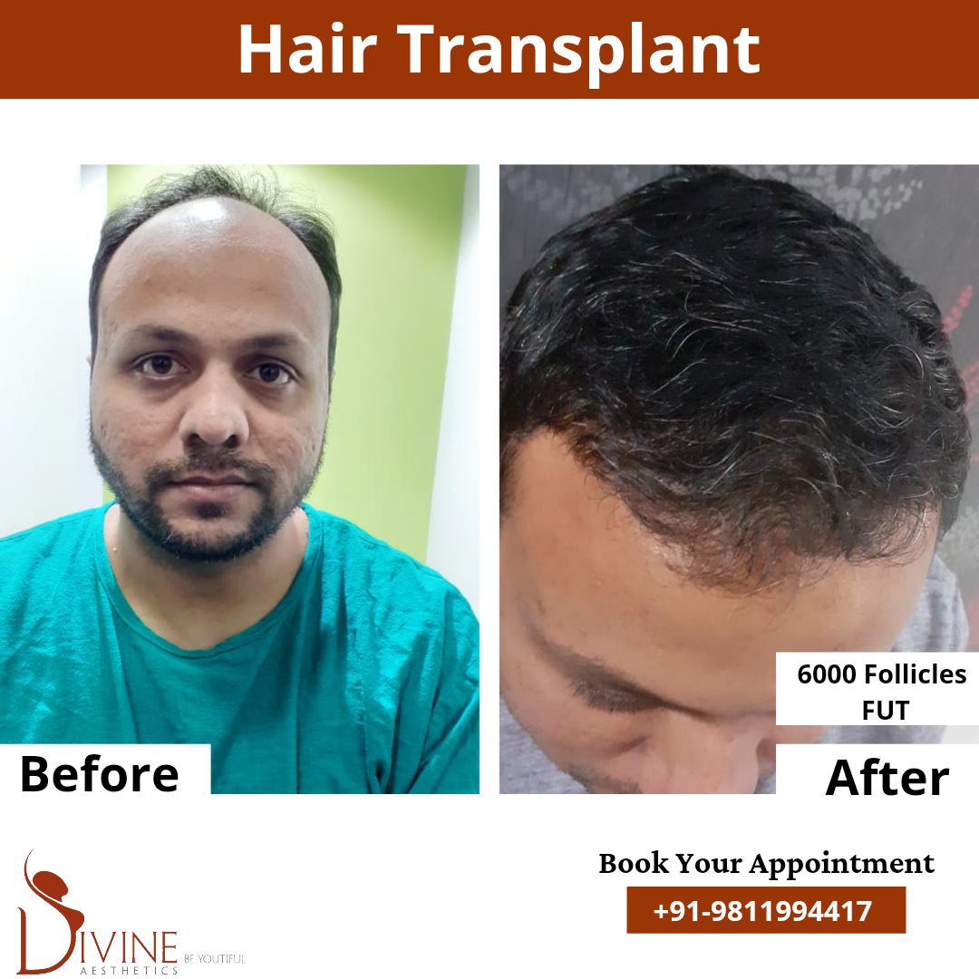 FUT Hair Transplant before after pictures done by dr amit gupta