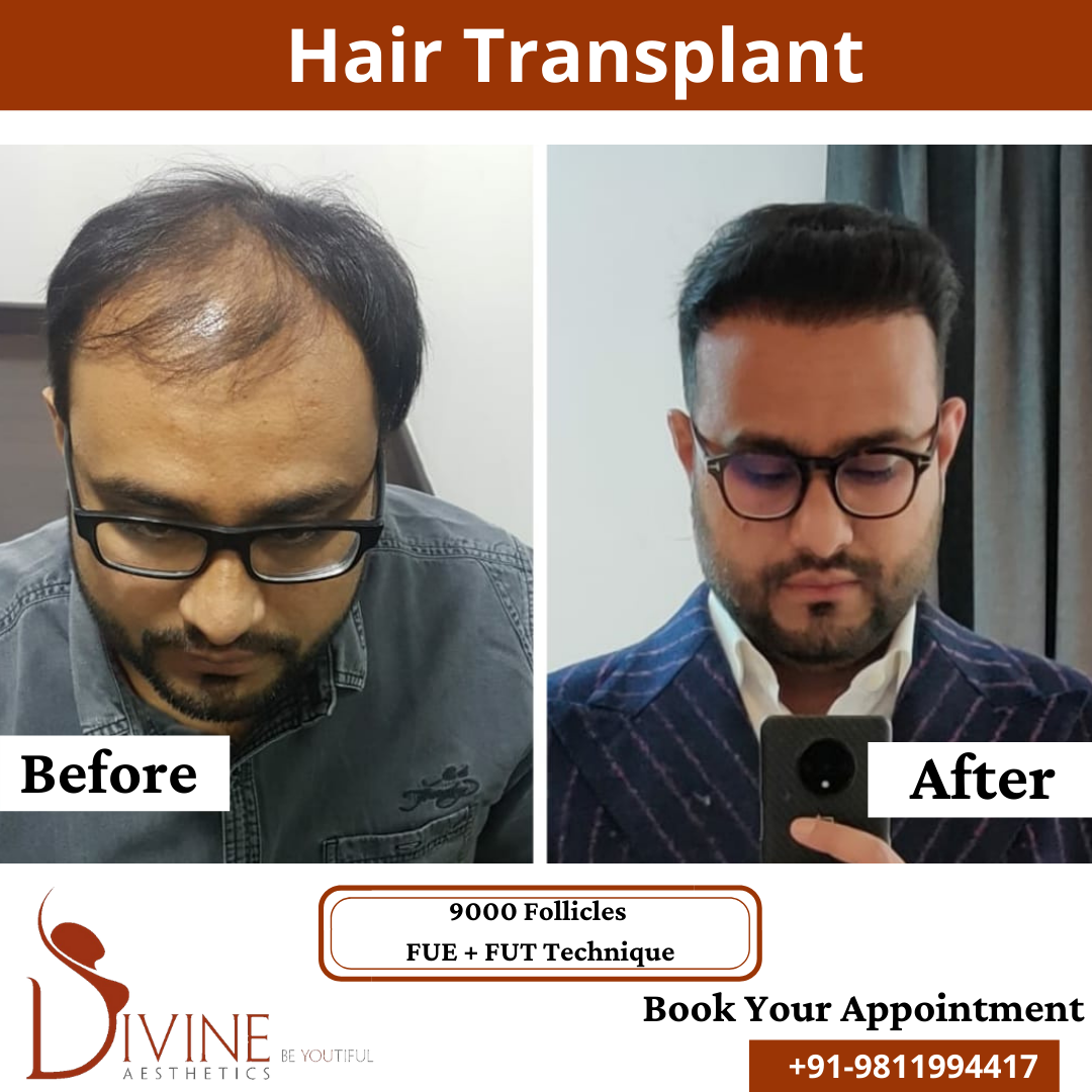 FUT+FUE Hair Transplant