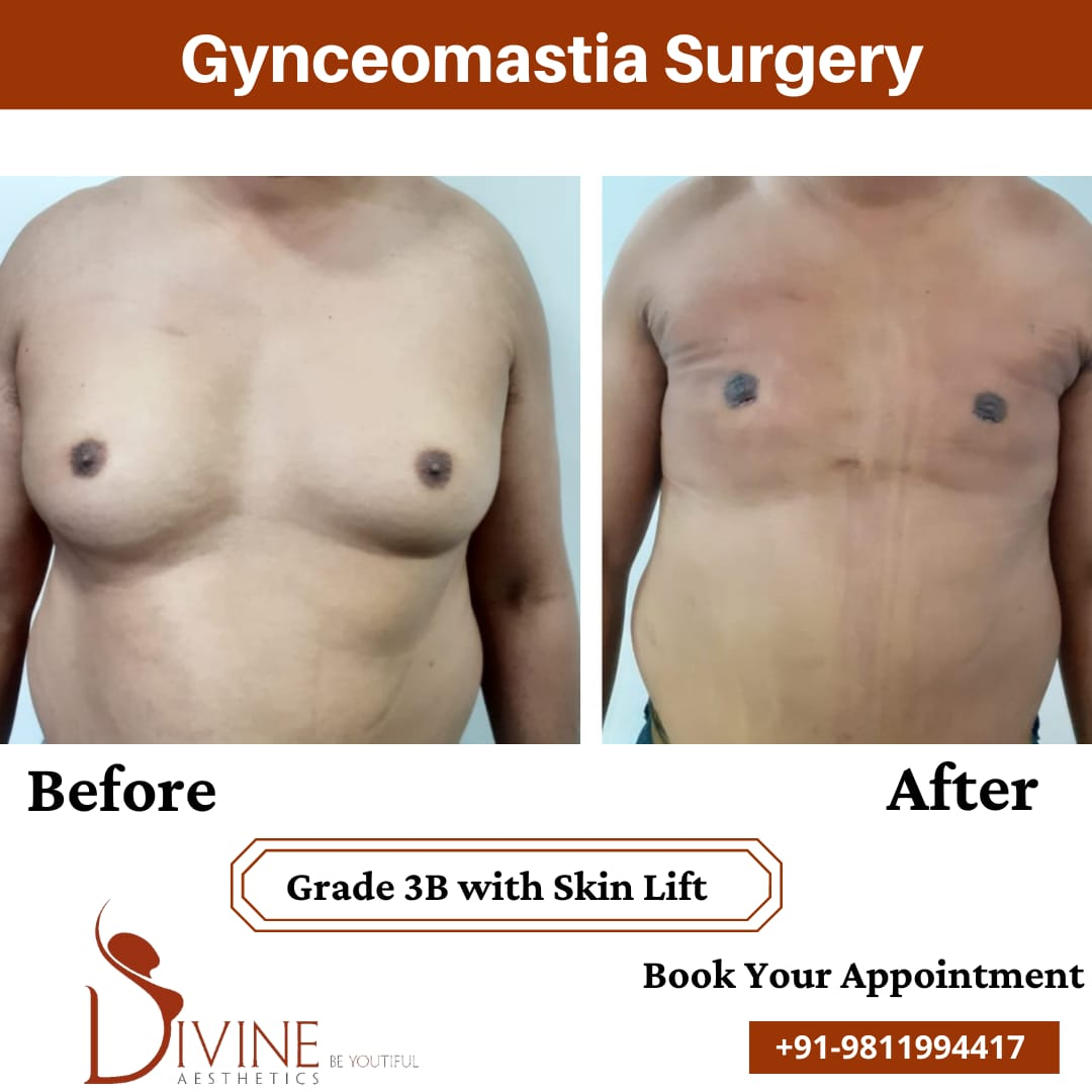 Here we have gynecomastia grade 3B before and after picture of our patient. This surgery is done by doctor Amit Gupta.