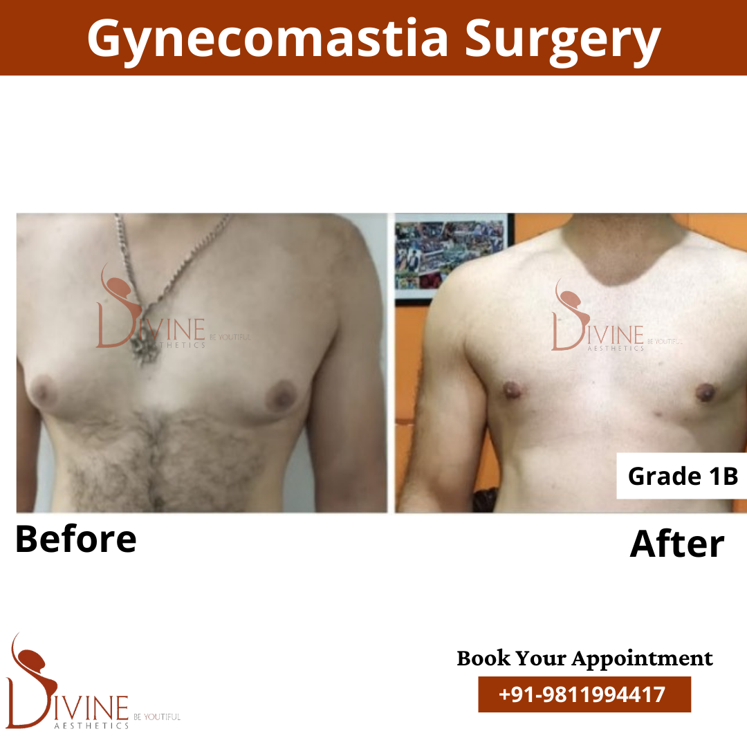 Here we have gynecomastia grade 1 before and after picture of our patient. This surgery is done by doctor Amit Gupta.