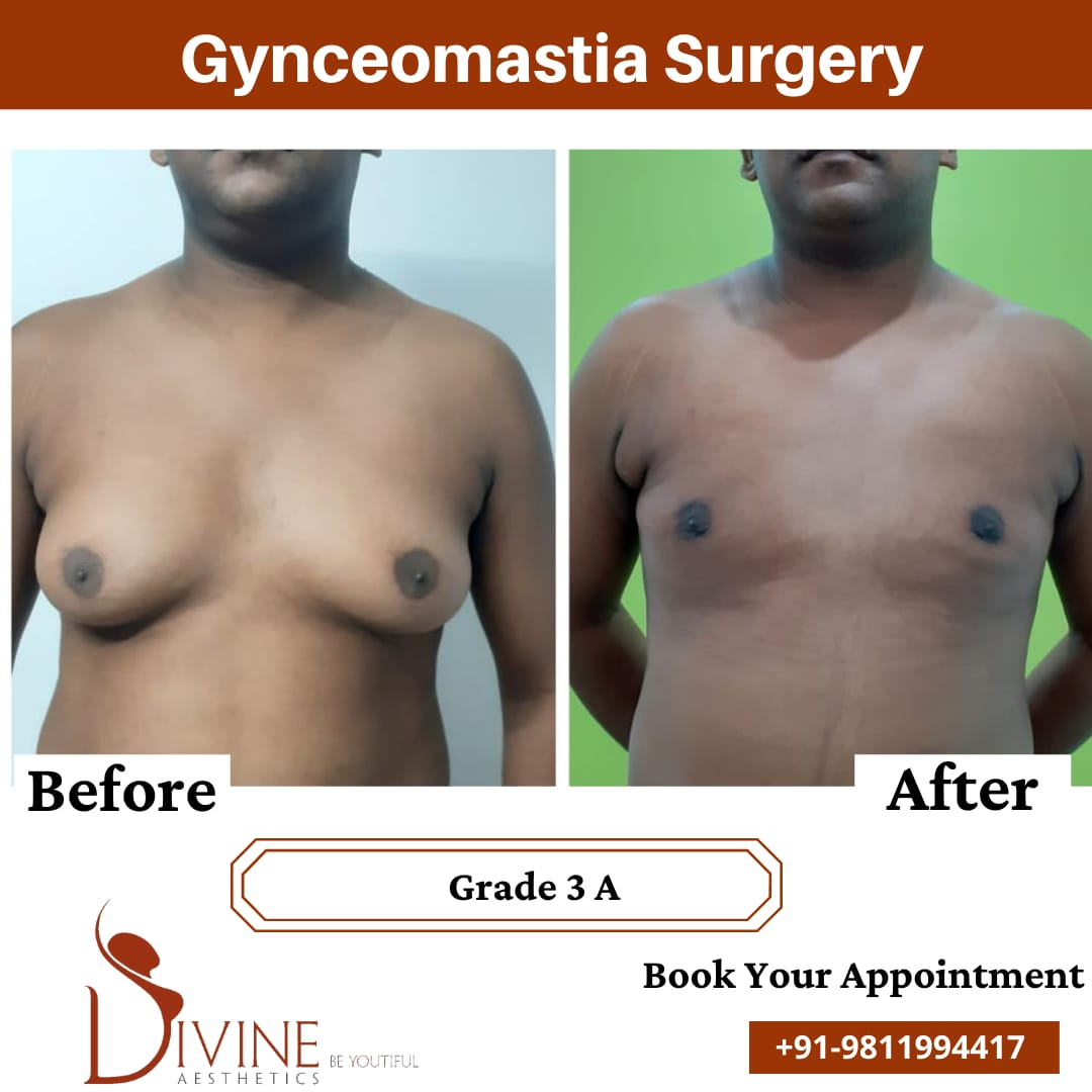 Here we have gynecomastia grade 3a before and after picture of our patient. This surgery is done by doctor Amit Gupta.