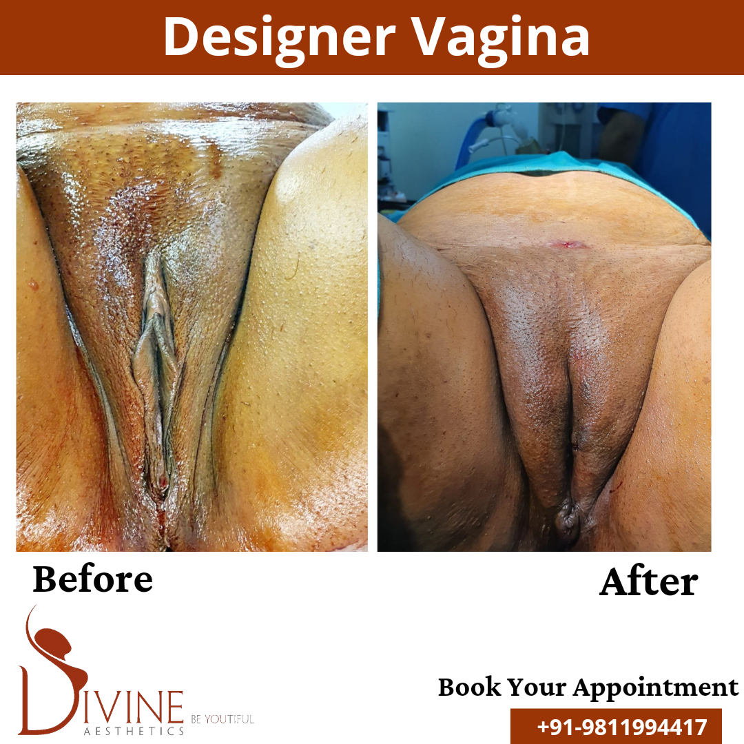 Designer Vagina Before and After Results, thr procedure done by Dr. AMit Gupta