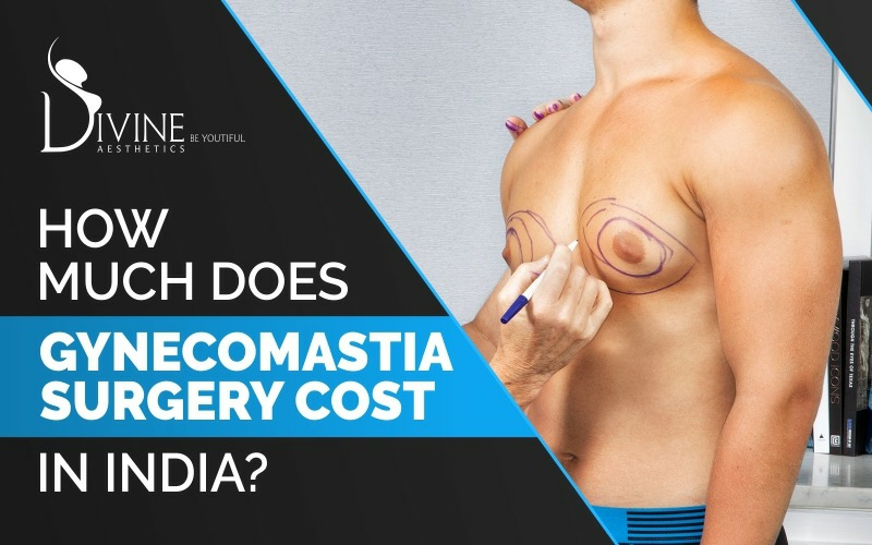 How Much Does Gynecomastia Surgery Cost In India?