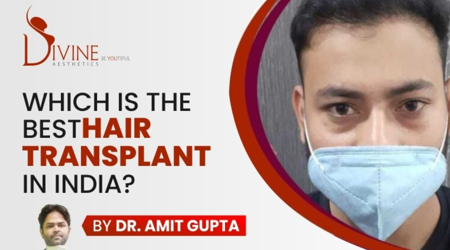 Which is the best hair transplant clinic in India? – Hair Transplant Surgery Clinic
