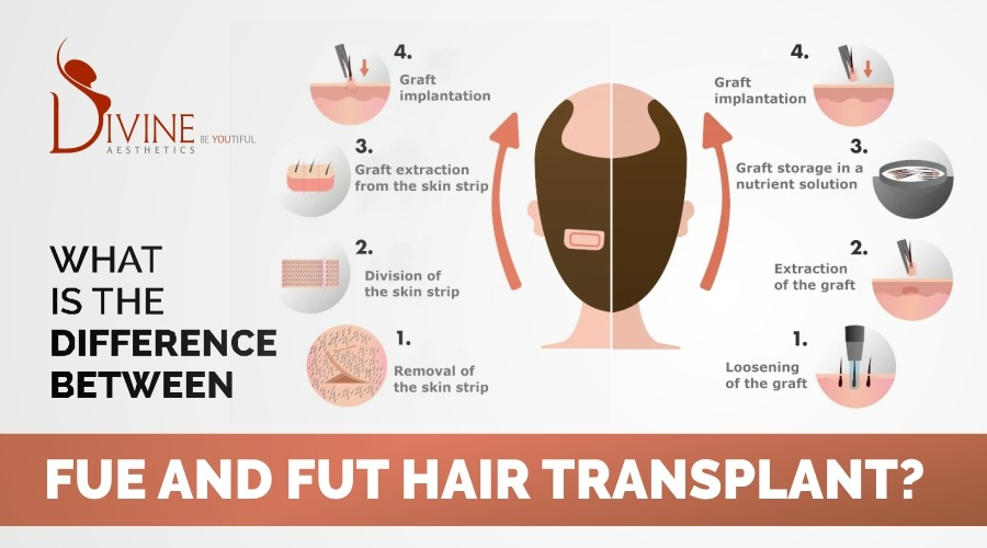 What is the difference between FUE and FUT hair transplant