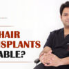 Are Hair Transplants Reliable?