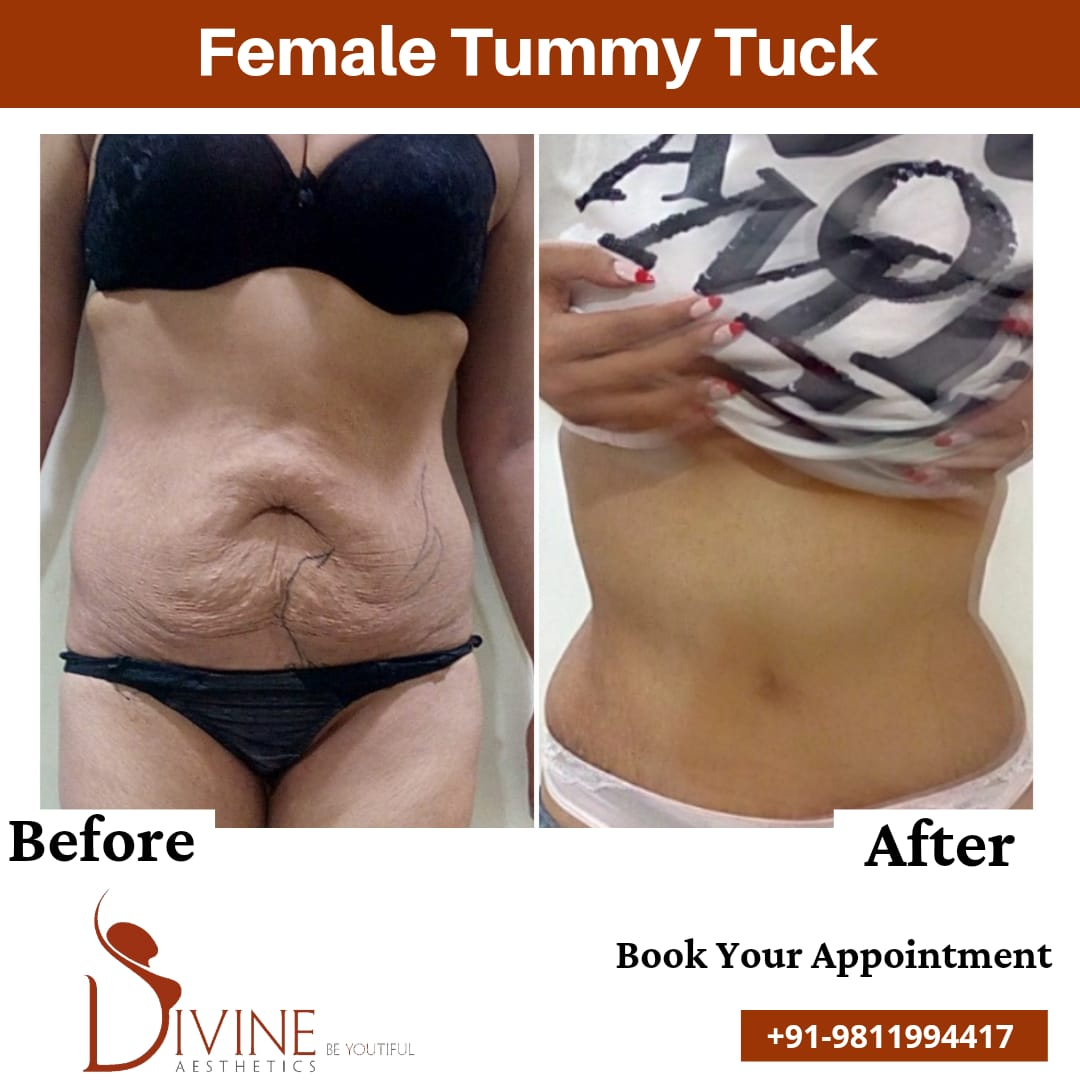Female Tummy Tuck Before After