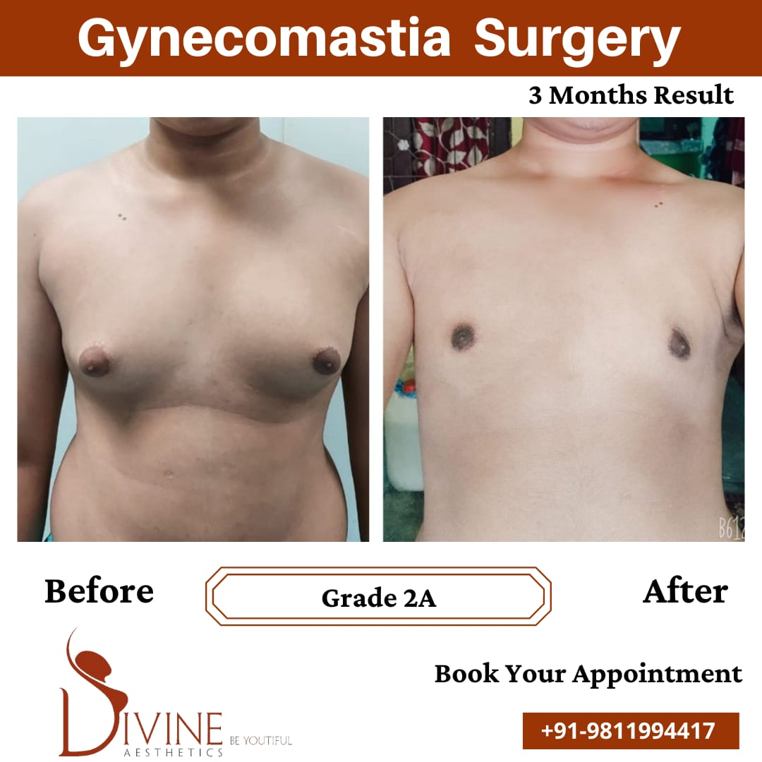Gynecomastia before after results after 3 months